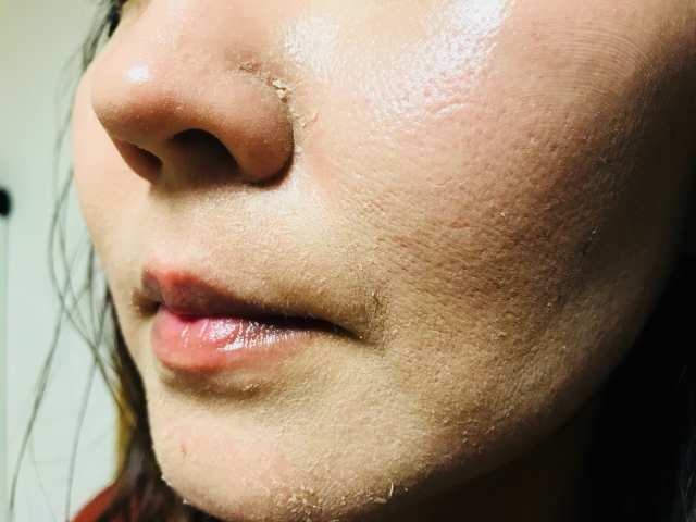 小鼻の画層